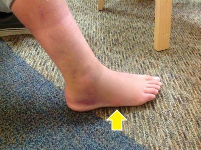 swollen_sprain